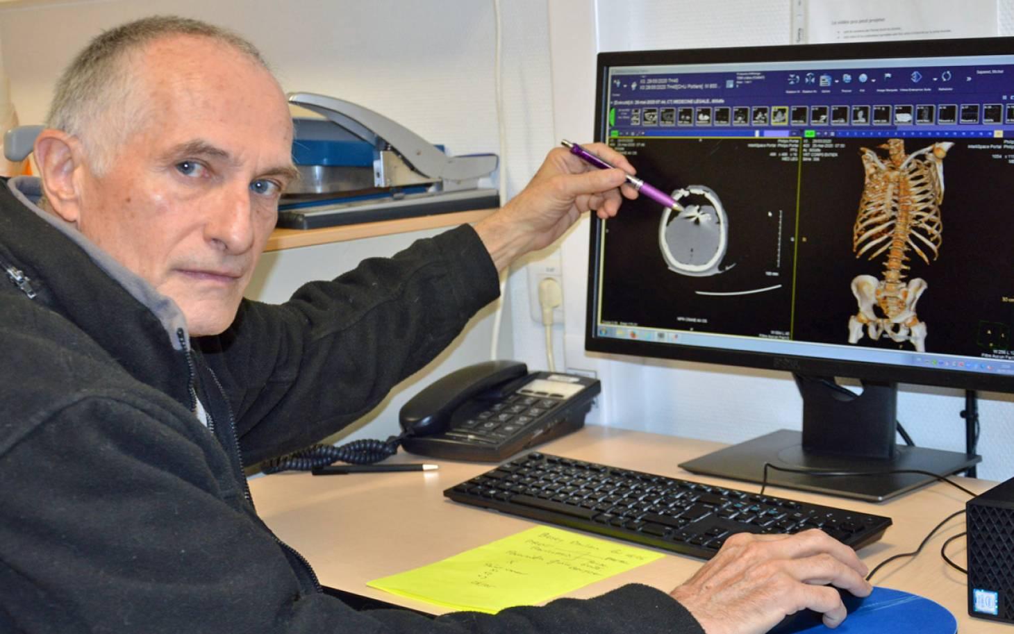Médecine légale : « Pas d'autopsie sans scanner »